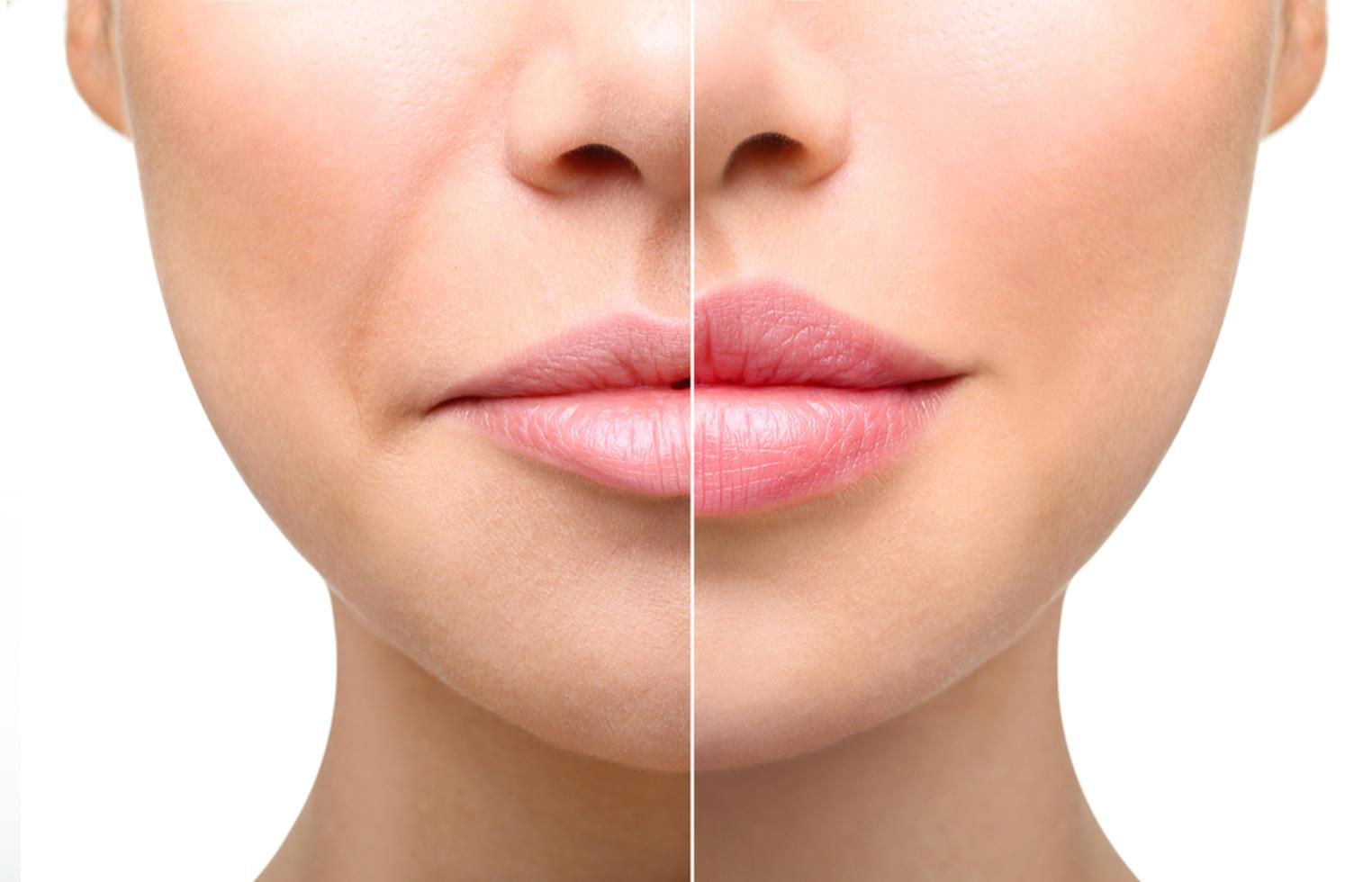 коррекции формы губ  Coolaser Clinic