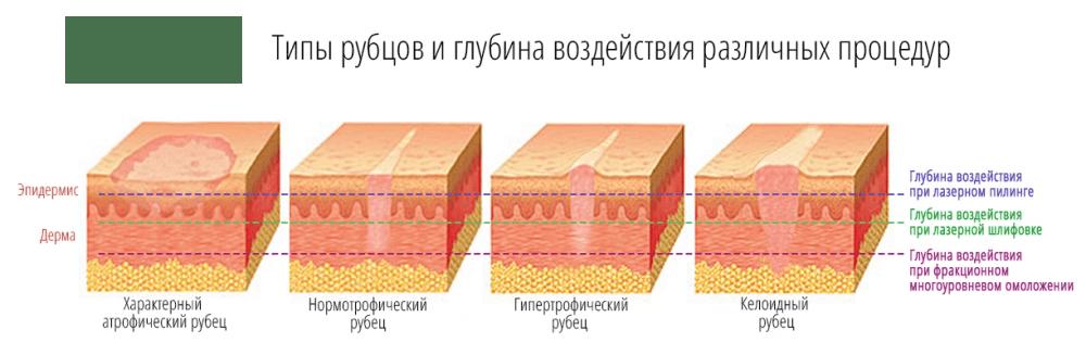 виды шрамов и рубцов на теле