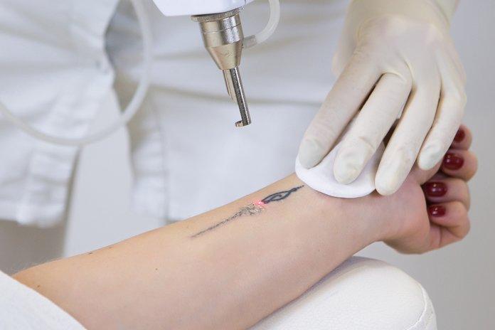 Лазерное удаление татуировки Coolaser clinic
