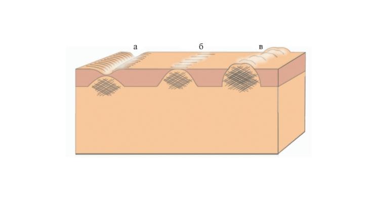 Разновидность рубцов/шрамов на лице