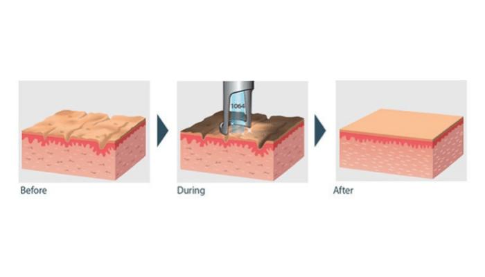 как работает карбоновый пилинг лазером