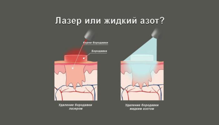 Удаление бородавок лазером