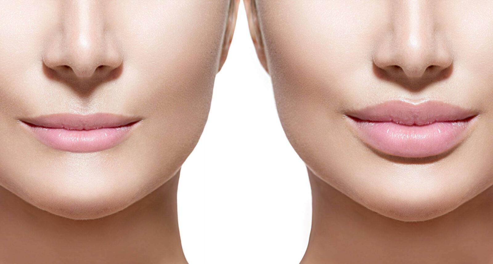 коррекции формы губ с большим эстетическим вкусом