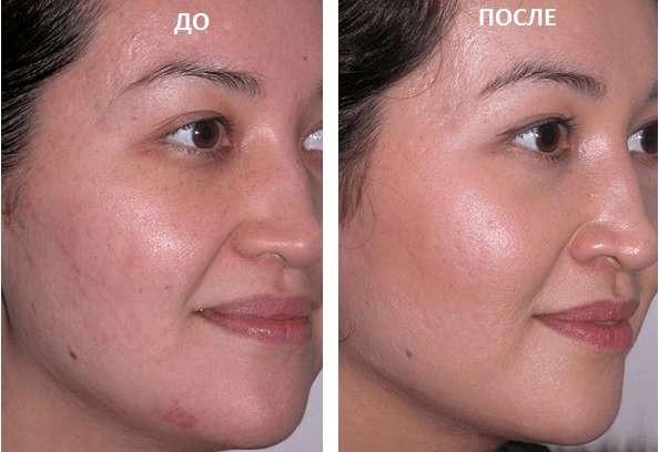 Применение химического пилинга для лица