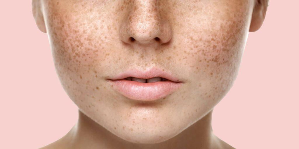 уменьшить нос без операции в домашних условиях