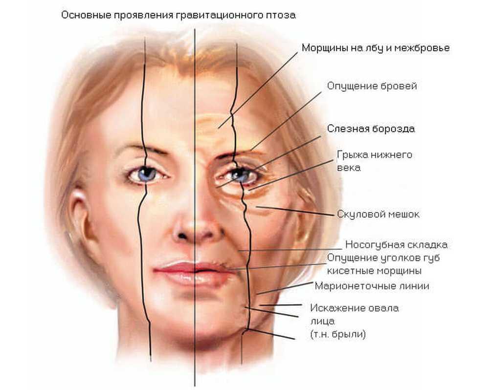 Безоперационная (лазерная) подтяжка лица