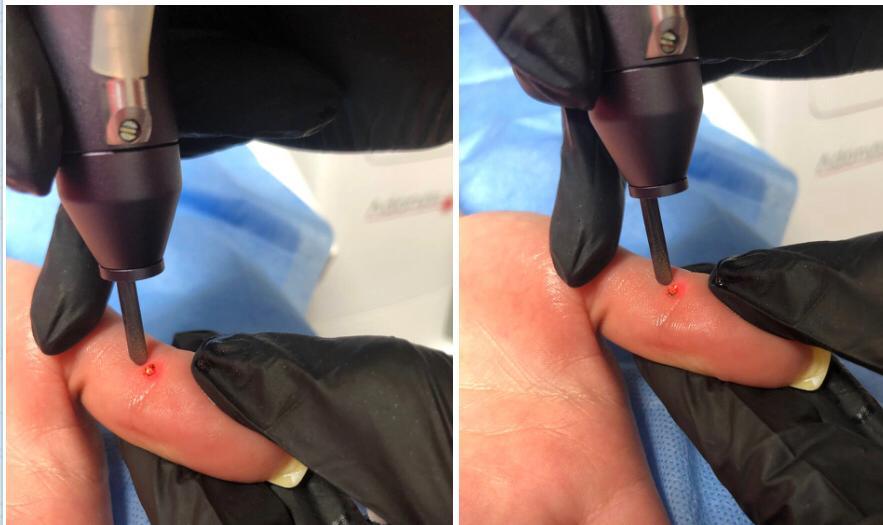 Два способа лазерного удаления бородавки