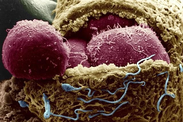 Эмбриональные стволовые клетки