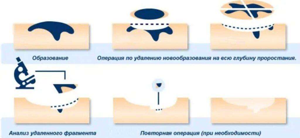 Лазерное удаление бородавки