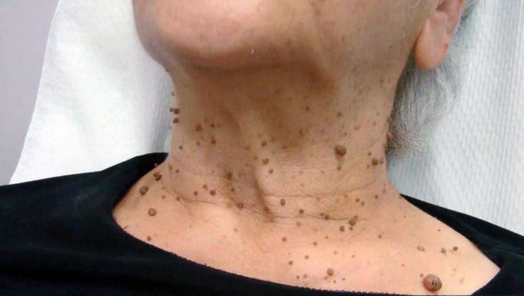 Кондиломы и бородавки удаление Coolaser clinic