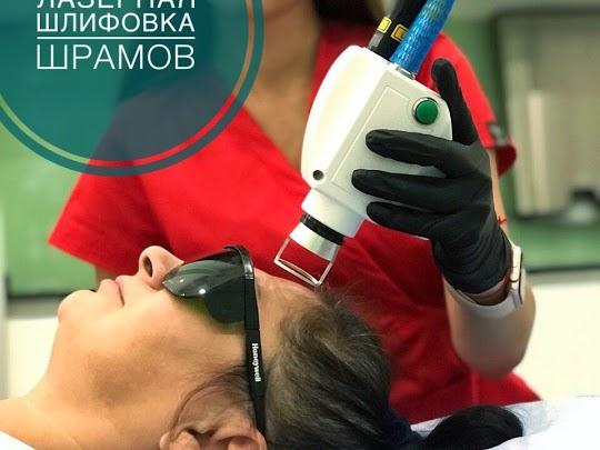 лазерная коррекция шрамов на лице