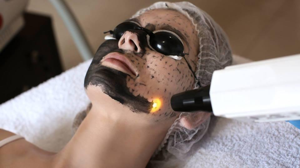 карбоновый пилинг лица Coolaser clinic