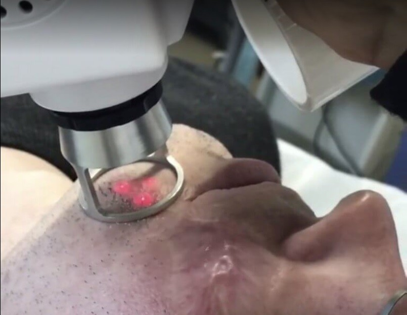 лазерная шлифовка шрама на лице