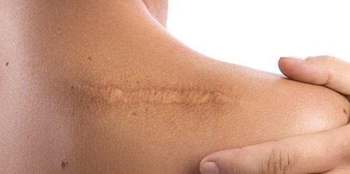 шрамы и рубцы