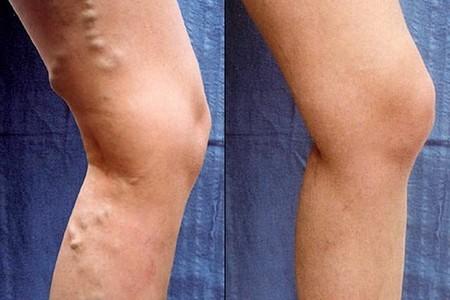 Флебология лазерная – хирургическое удаление крупных вен на ногах