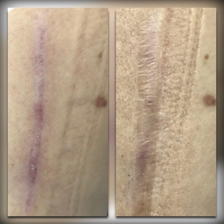 Лазерное удаление шрамов  на теле