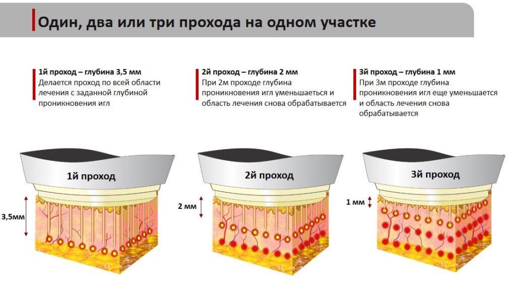 Микроигольчатый RF-лифтинг