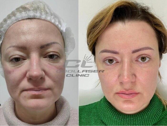 Лазерная шлифовка лица: отзывы о процедуре
