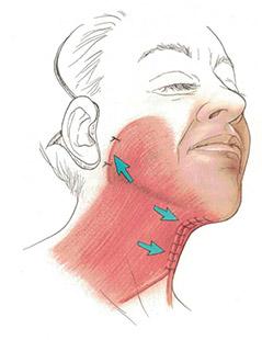 Platysmoplasty