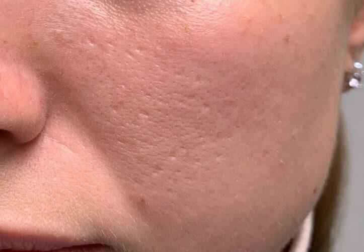 Как убрать шрамы на лице