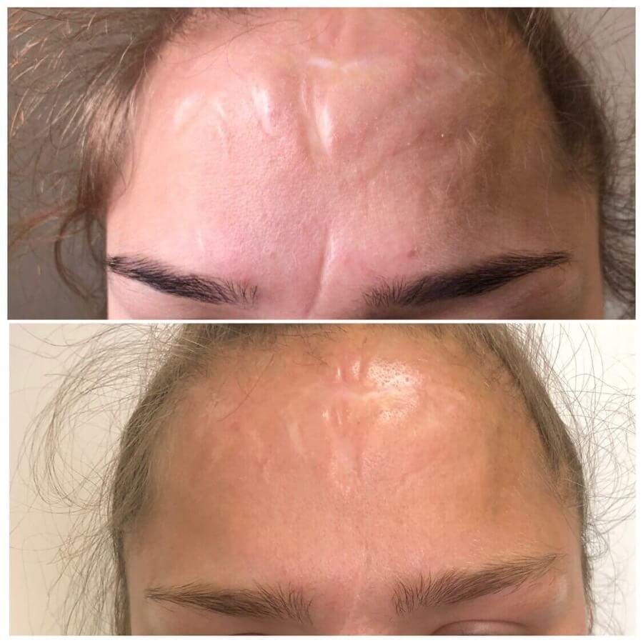 Результат лазерного удаления старых шрамов на лице. Фото до и после