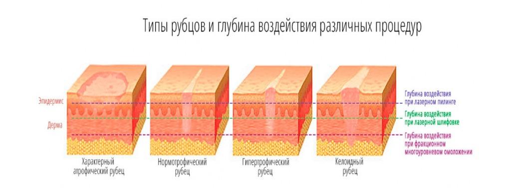 Типы рубцов картинка