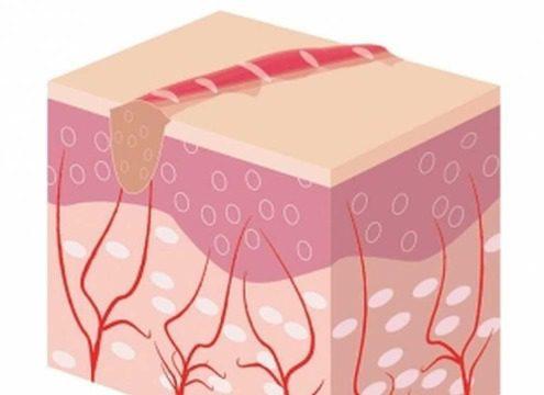 Гипертрофический рубец