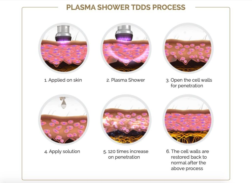 Как работает плазмашауер фото
