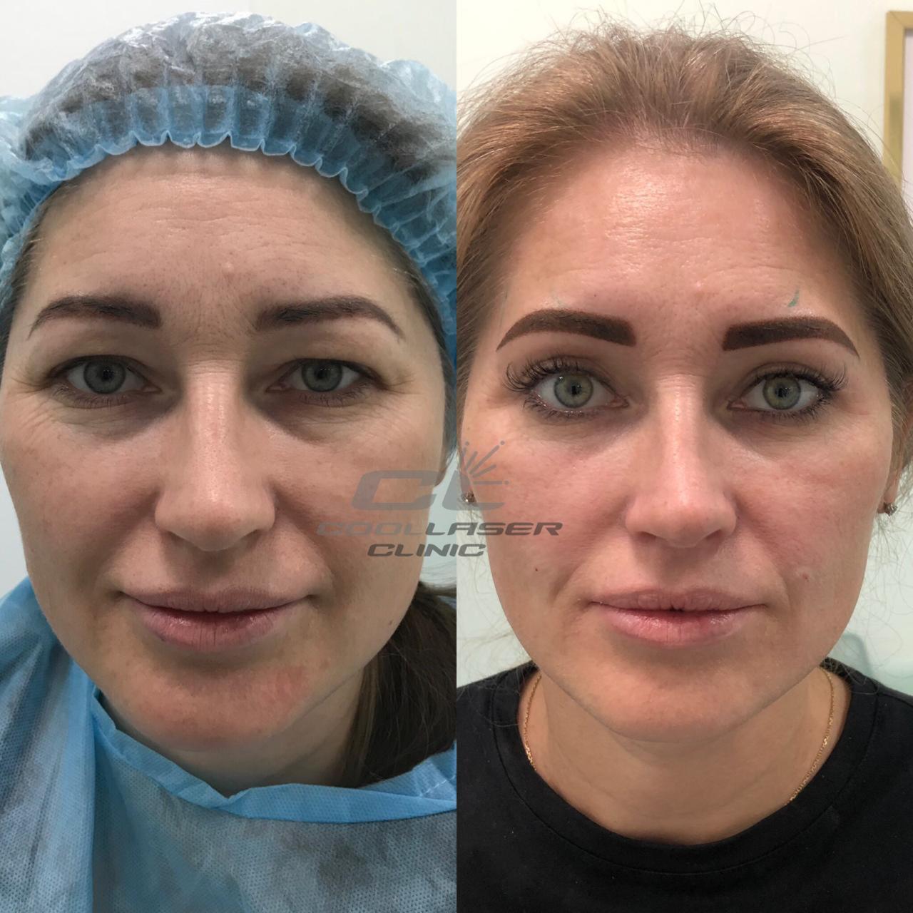 Операция блефаропластики до и после
