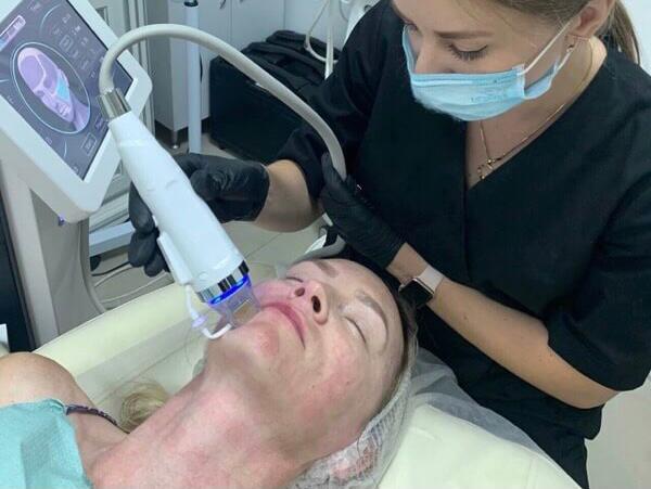Фракционная мезо терапия