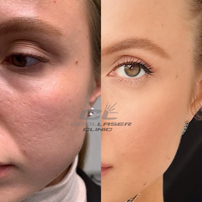 Лазерн шлифовка до и после фото