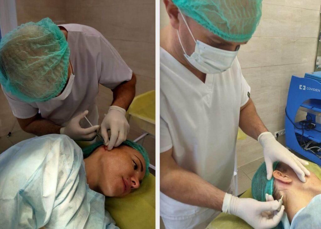 панчбиопсия фото