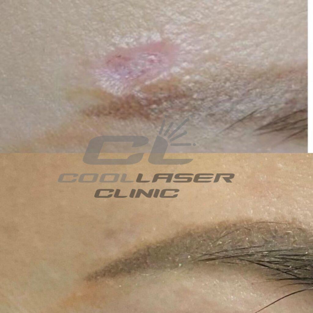 Результат лазерного Удаления шрама на лице. Фото до и после.