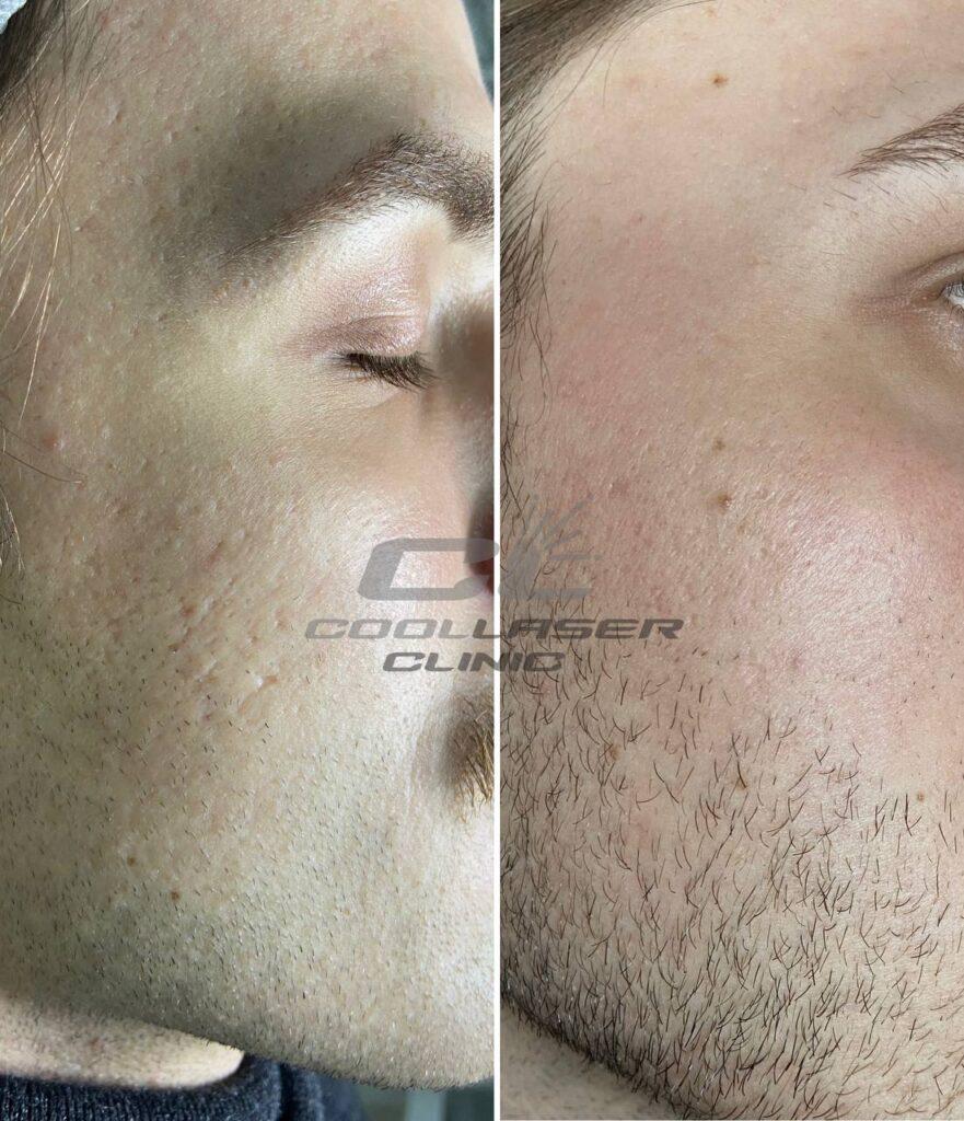 Результат удаления шрама постакне. Фото до и после