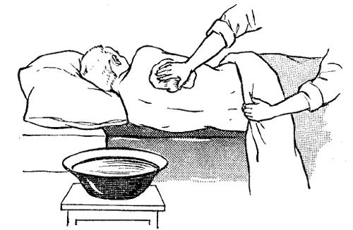 Обработка кожи лежачего больного