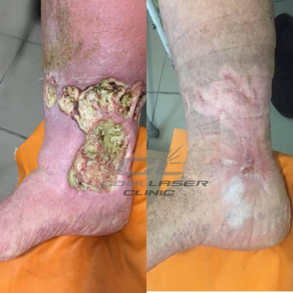 Фото До и После лечения незаживающей раны голени