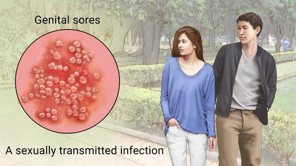 Генитальный герпес лечение и симптомы