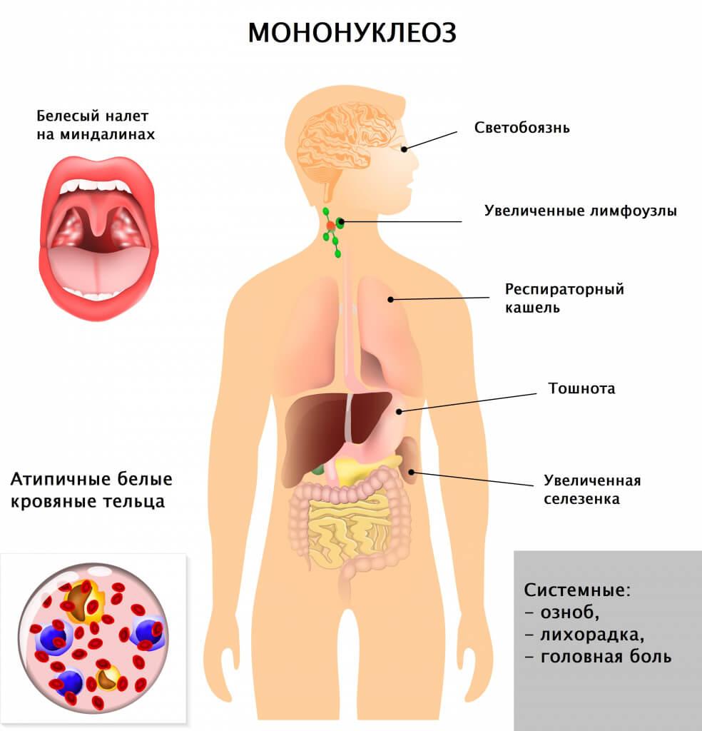 Инфекционный мононуклеоз - клинические рекомендации