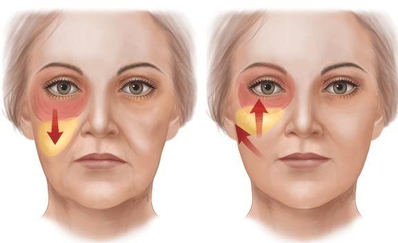 Липомоделирование лица