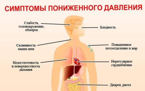 таблица симптомов пониженого давления