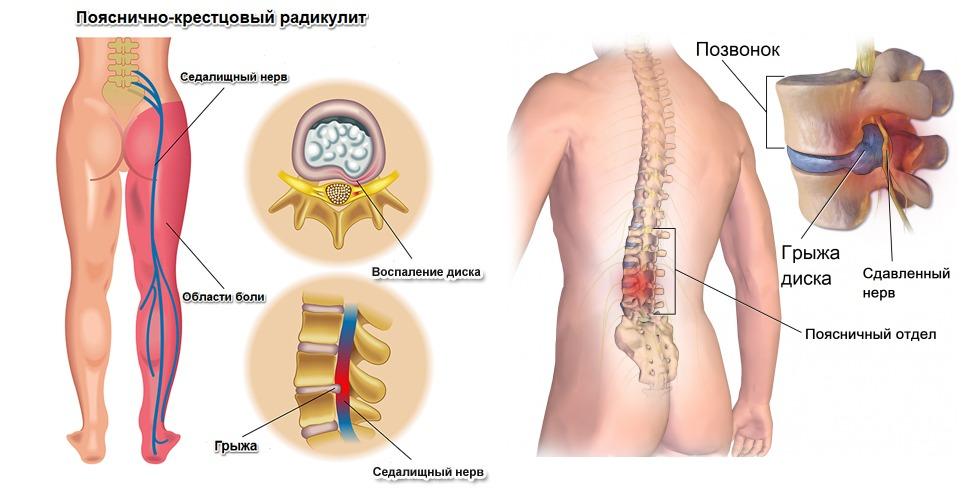 Радикулит причины симптомы лечение