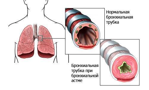 Болезни органов дыхания: астма