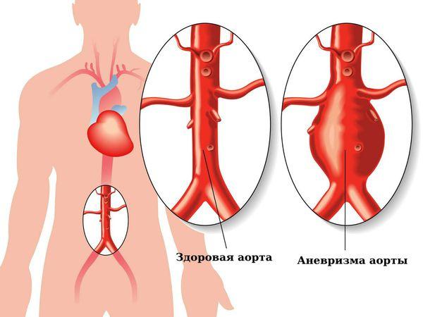 Симптомы аневризма аорты