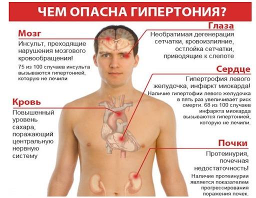 Инсульт после гипертонии. Фото