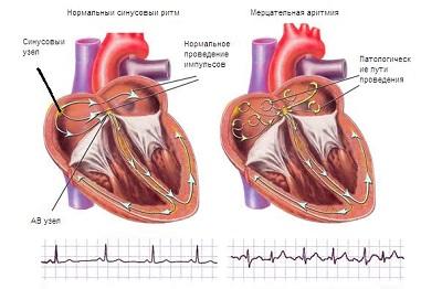 Шумы в сердце рисунок