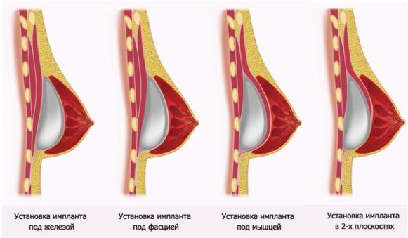 Иесто расположения импланта при увеличении груди