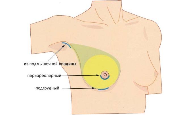 Виды увеличивающей грудь маммопластики схема