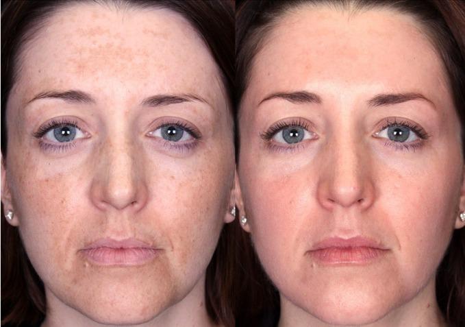 Эффект после ретиноевого пилинга