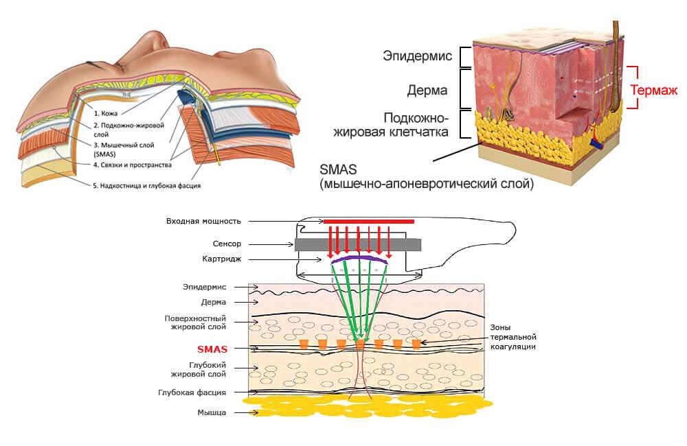 Апоневротический  слой СМАС