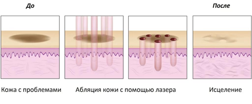 Фракционная лазерная обработка кожи